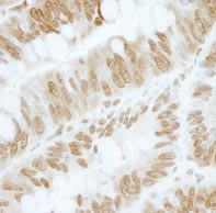 Immunohistochemistry (Formalin/PFA-fixed paraffin-embedded sections) - ZBTB40 antibody (ab87260)