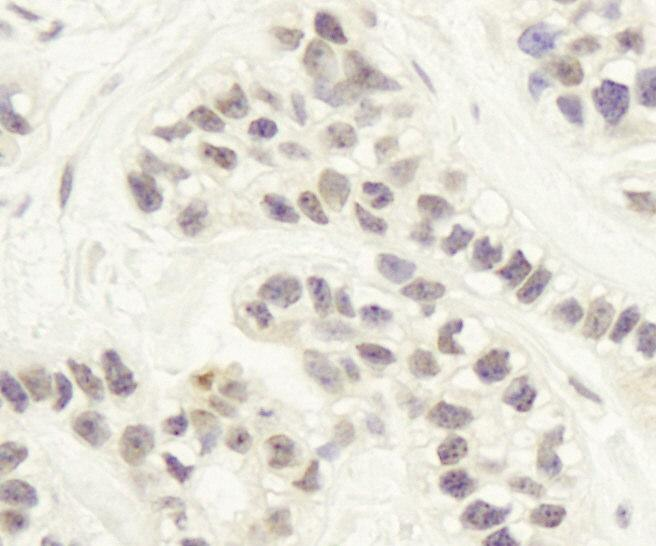 Immunohistochemistry (Formalin/PFA-fixed paraffin-embedded sections) - Artemis antibody (ab87271)