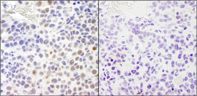 Immunohistochemistry (Formalin/PFA-fixed paraffin-embedded sections) - RPA32/RPA2 (phospho S4 + S8) antibody (ab87277)