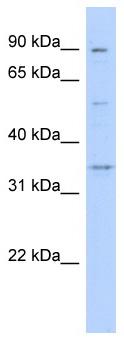 Western blot - Wnt9b antibody (ab87284)