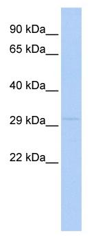 Western blot - LYPD4 antibody (ab87289)