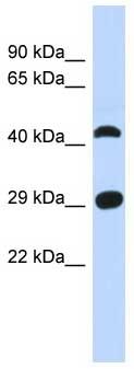 Western blot - C4orf22 antibody (ab87295)