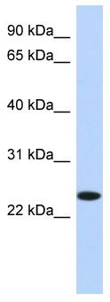 Western blot - NKAIN4 antibody (ab87299)