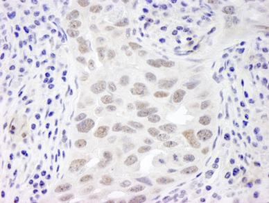 Immunohistochemistry (Formalin/PFA-fixed paraffin-embedded sections) - EMSY antibody (ab87316)