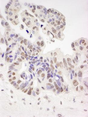 Immunohistochemistry (Formalin/PFA-fixed paraffin-embedded sections) - HIV TAT specific factor 1 antibody (ab87317)