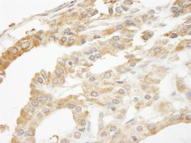 Immunohistochemistry (Formalin/PFA-fixed paraffin-embedded sections) - ABCF2 antibody (ab87318)