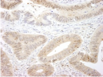 Immunohistochemistry (Formalin/PFA-fixed paraffin-embedded sections) - MST1/MST2 antibody (ab87322)