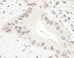 Immunohistochemistry (Formalin/PFA-fixed paraffin-embedded sections) - TPX2 antibody (ab87324)