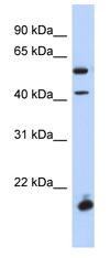 Western blot - DBX1 antibody (ab87327)