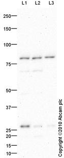 Western blot - PDE4D antibody (ab87329)