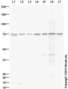 Western blot - Anti-15 Lipoxygenase 1 antibody (ab87353)