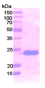 SDS-PAGE - Podoplanin / gp36 protein (His tag) (ab87357)