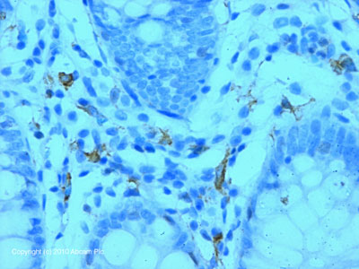 Immunohistochemistry (Formalin/PFA-fixed paraffin-embedded sections) - DC-SIGN antibody (ab87375)