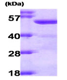 SDS-PAGE - ALDH2 protein (Human) (ab87415)