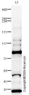 Western blot - C4d antibody (ab87424)