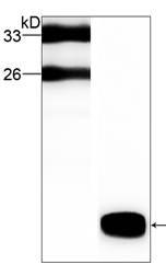 Western blot - C3orf10 antibody [37] (ab87449)