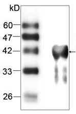 Western blot - LZTFL1 antibody [1] (ab87451)