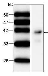 Western blot - IST1 antibody [22] (ab87456)