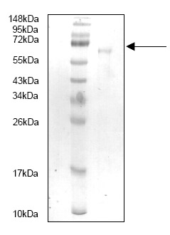 SDS-PAGE - HGF protein (His tag) (ab87479)