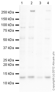 Western blot - Anti-beta 2 Microglobulin antibody (ab87483)