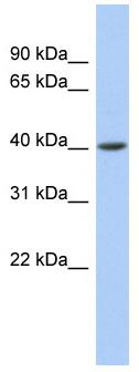 Western blot - ACADS antibody (ab87544)