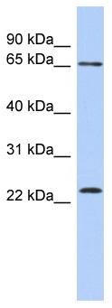 Western blot - ZNF428 antibody (ab87545)