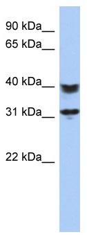 Western blot - C5orf35 antibody (ab87548)