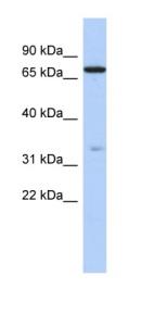 Western blot - ATXN7L2 antibody (ab87555)