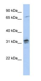 Western blot - Anti-Histone H1oo  antibody (ab87556)