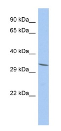 Western blot - FAM78A antibody (ab87557)