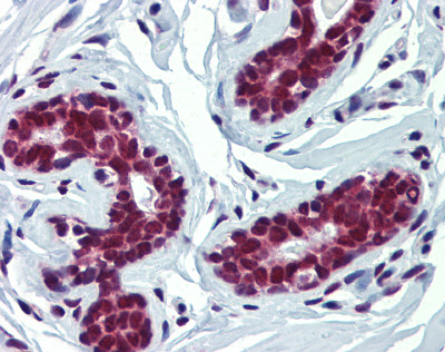 Immunohistochemistry (Formalin/PFA-fixed paraffin-embedded sections) - Anti-FUBP3 antibody (ab87558)