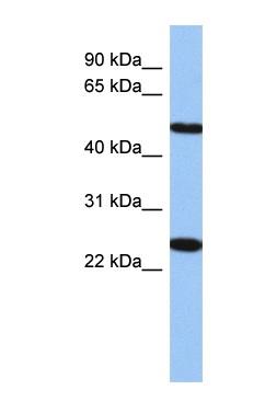 Western blot - TMEM161B antibody (ab87563)