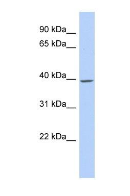 Western blot - TMCC1 antibody (ab87564)