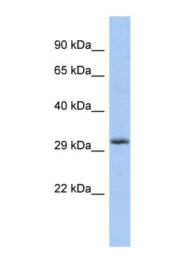 Western blot - FGF13 antibody (ab87565)