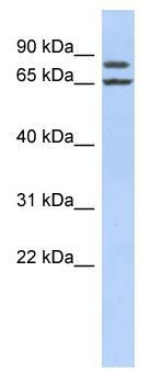 Western blot - FSIP1 antibody (ab87570)