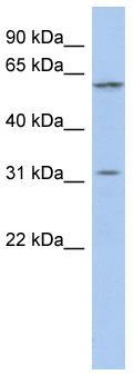 Western blot - Anti-C1orf110 antibody (ab87573)