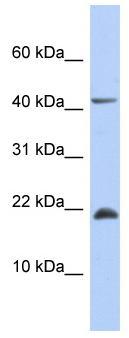 Western blot - SFRS12IP1 antibody (ab87578)