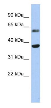 Western blot - RDH10 antibody (ab87586)