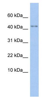 Western blot - P2X5 antibody (ab87588)