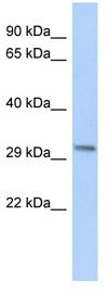Western blot - Anti-c8orf84 antibody (ab87593)