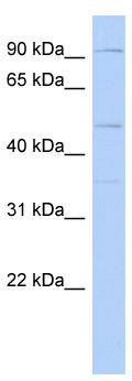 Western blot - DPY19L2 antibody (ab87596)