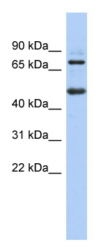 Western blot - ZBTB26 antibody (ab87600)