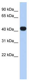 Western blot - RASGEF1C antibody (ab87602)