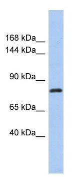 Western blot - KLHL32 antibody (ab87607)