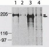 Immunoprecipitation - Dnmt1 antibody (ab87656)