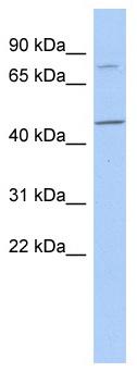 Western blot - FBXO39 antibody (ab87657)