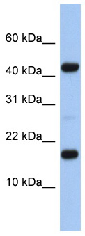 Western blot - FLJ37543 antibody (ab87658)