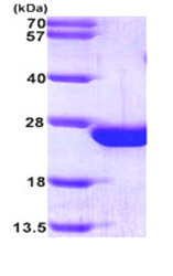 SDS-PAGE - RAC2 protein (His tag) (ab87665)