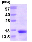 SDS-PAGE - Neurokinin B  protein (His tag) (ab87669)