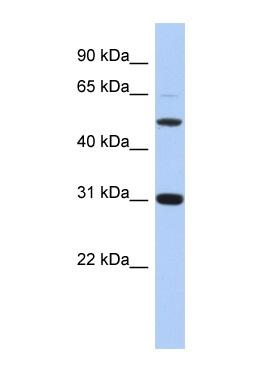 Western blot - Peptidase inhibitor 16 antibody (ab87681)